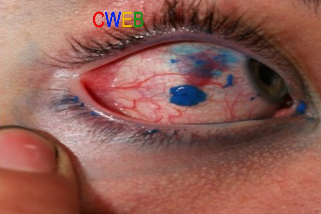 eyetatoocweb.jpg
