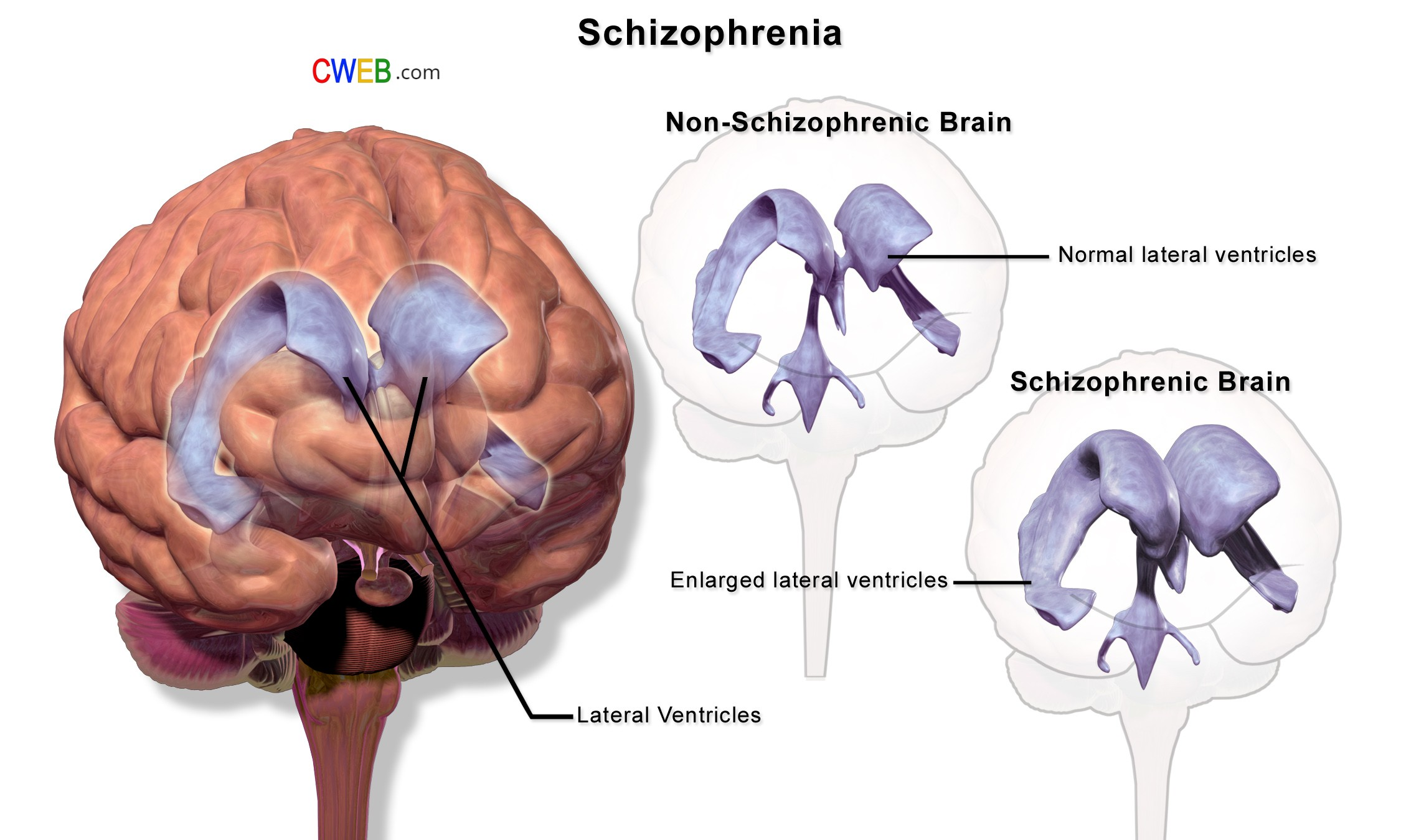 Schizophrenia_(Illustration)