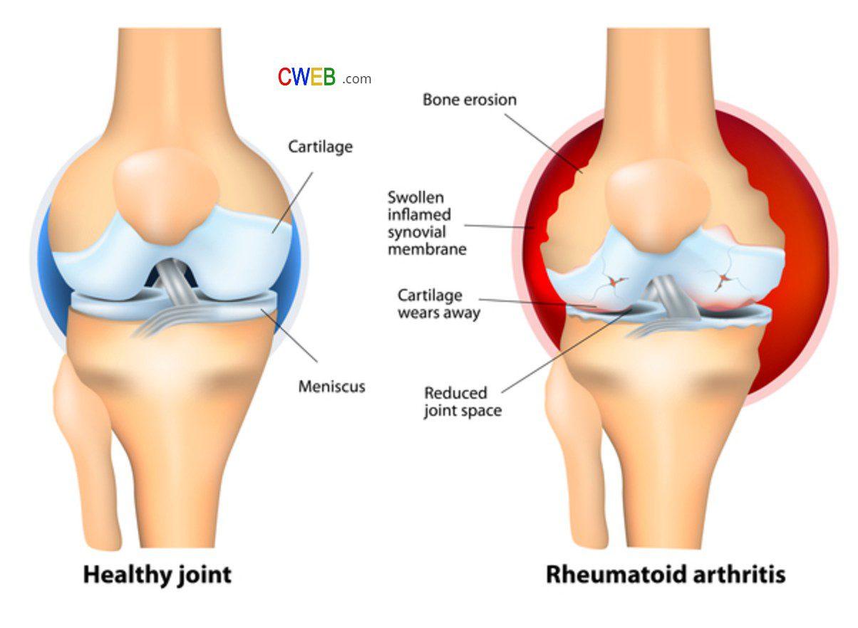 arthtritis